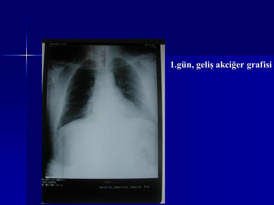 1.gün, geliş akciğer grafisi