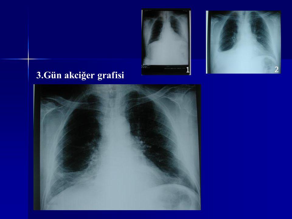 1 2 3.Gün akciğer grafisi