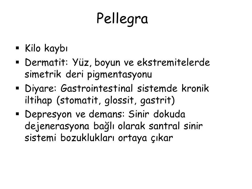 Pellegra Kilo kaybı. Dermatit: Yüz, boyun ve ekstremitelerde simetrik deri pigmentasyonu.