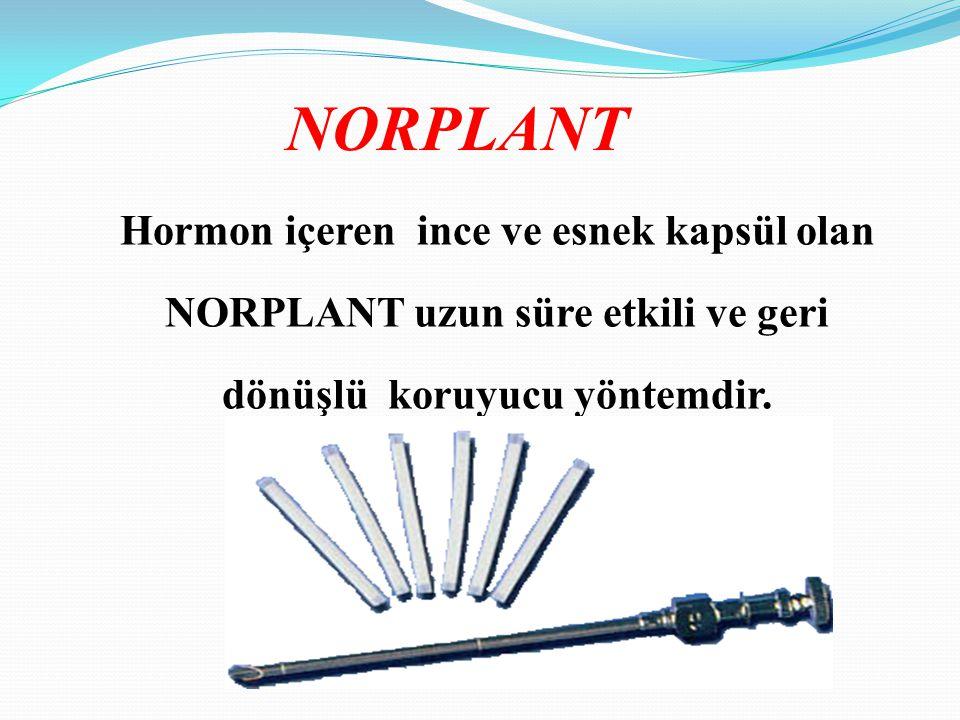 Hormon içeren ince ve esnek kapsül olan NORPLANT uzun süre etkili ve geri dönüşlü koruyucu yöntemdir.