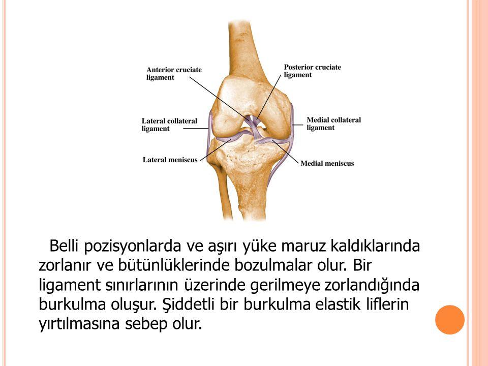 Belli pozisyonlarda ve aşırı yüke maruz kaldıklarında zorlanır ve bütünlüklerinde bozulmalar olur.