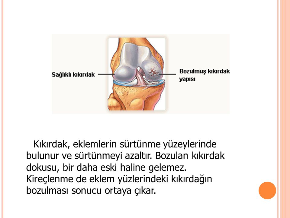 Kıkırdak, eklemlerin sürtünme yüzeylerinde bulunur ve sürtünmeyi azaltır.