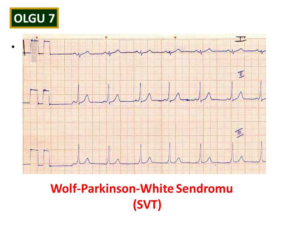 Wolf-Parkinson-White Sendromu (SVT)