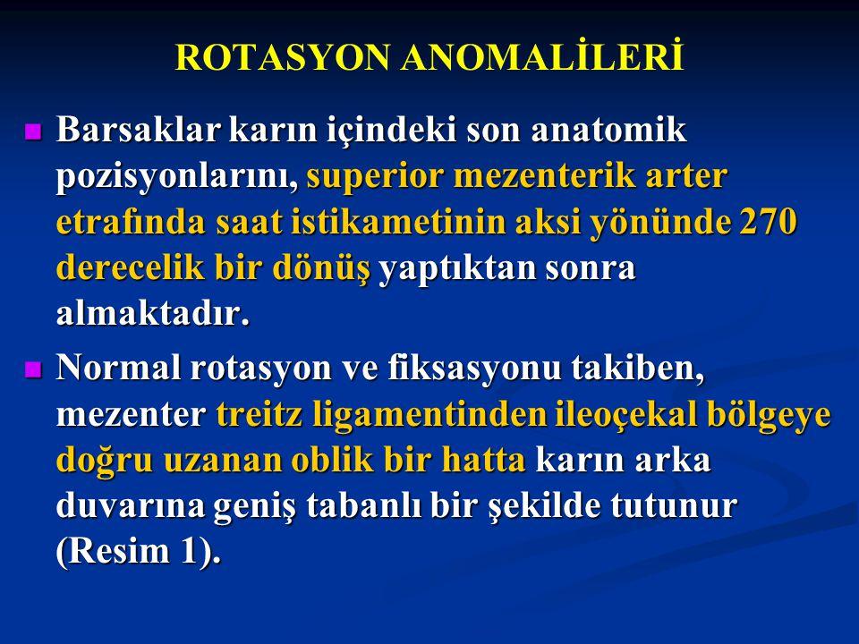 ROTASYON ANOMALİLERİ