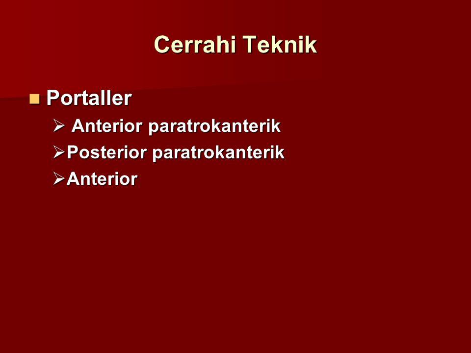Cerrahi Teknik Portaller Anterior paratrokanterik