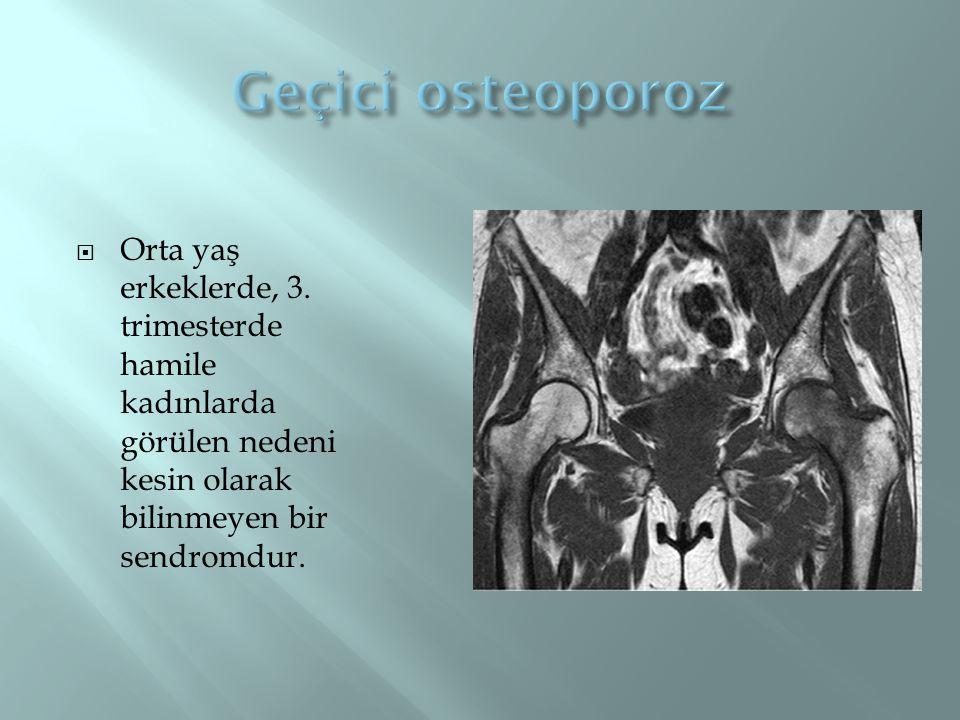 Geçici osteoporoz Orta yaş erkeklerde, 3.