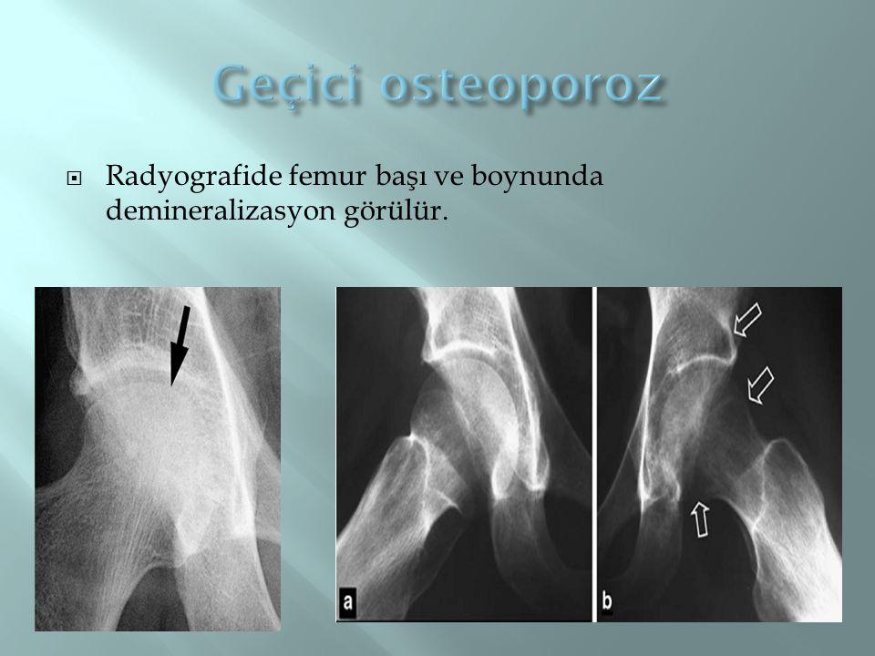 Geçici osteoporoz Radyografide femur başı ve boynunda demineralizasyon görülür.