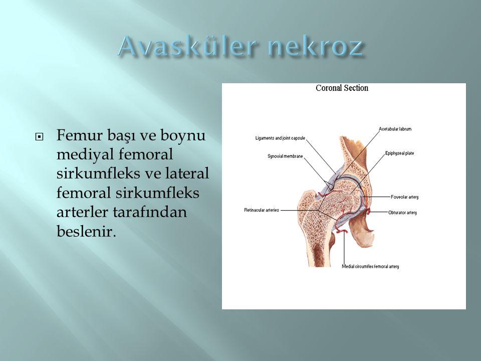 Avasküler nekroz Femur başı ve boynu mediyal femoral sirkumfleks ve lateral femoral sirkumfleks arterler tarafından beslenir.