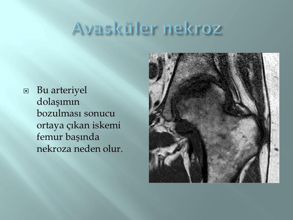Avasküler nekroz Bu arteriyel dolaşımın bozulması sonucu ortaya çıkan iskemi femur başında nekroza neden olur.