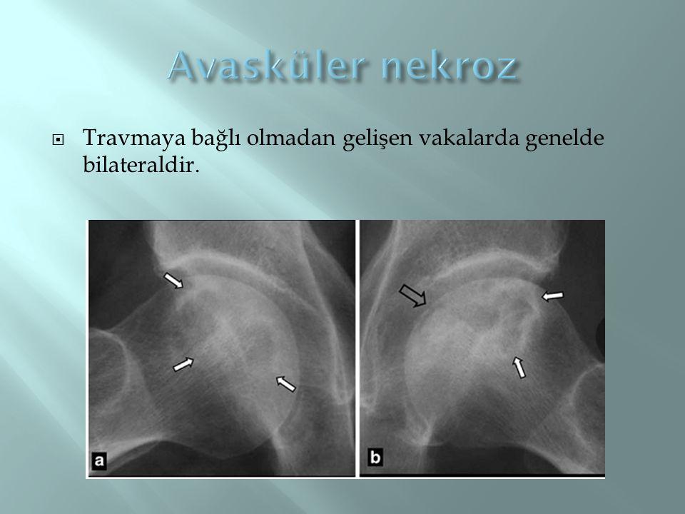 Avasküler nekroz Travmaya bağlı olmadan gelişen vakalarda genelde bilateraldir.