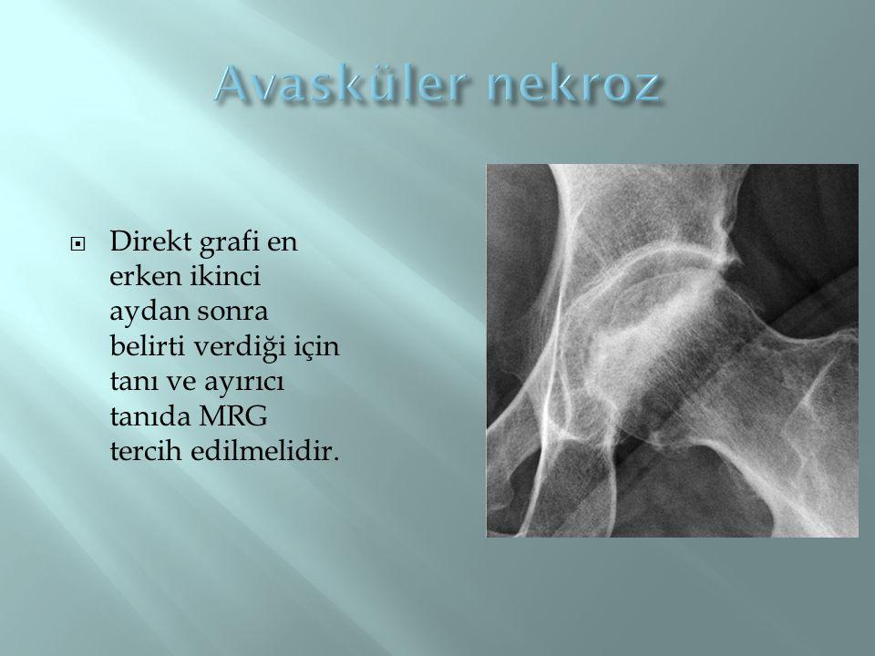 Avasküler nekroz Direkt grafi en erken ikinci aydan sonra belirti verdiği için tanı ve ayırıcı tanıda MRG tercih edilmelidir.