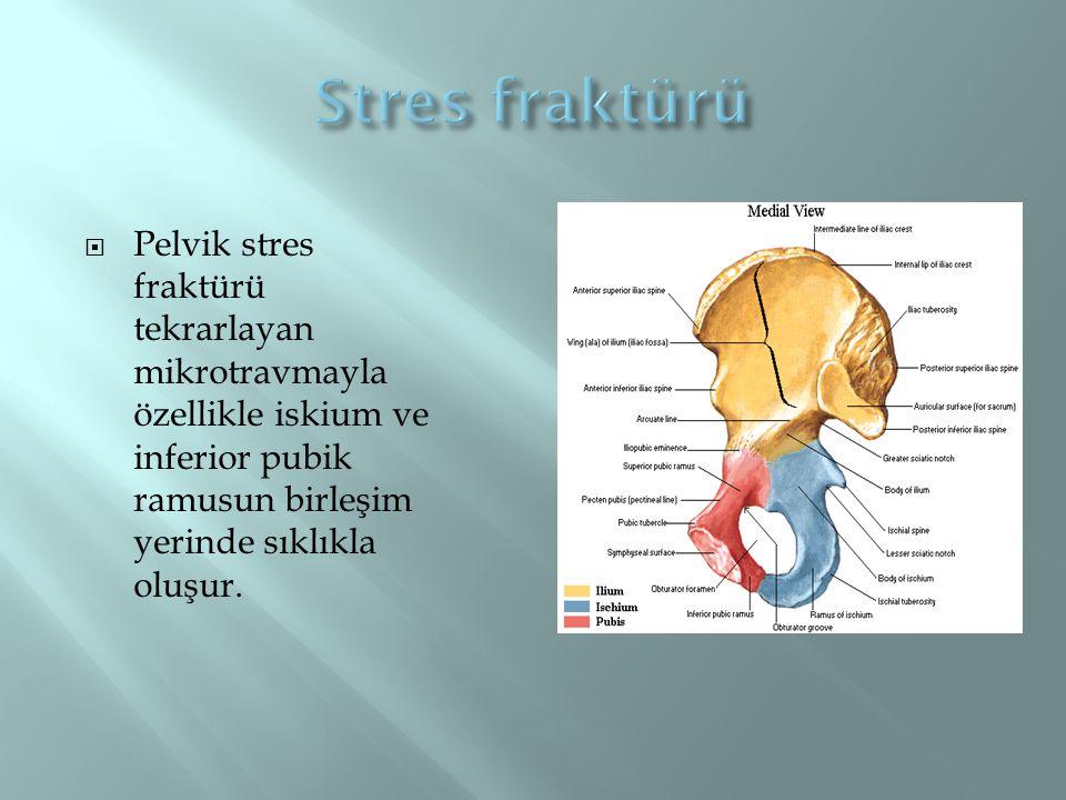 Stres fraktürü Pelvik stres fraktürü tekrarlayan mikrotravmayla özellikle iskium ve inferior pubik ramusun birleşim yerinde sıklıkla oluşur.