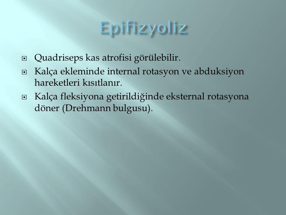 Epifizyoliz Quadriseps kas atrofisi görülebilir.