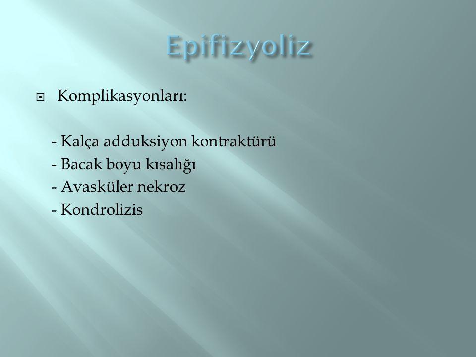 Epifizyoliz Komplikasyonları: - Kalça adduksiyon kontraktürü