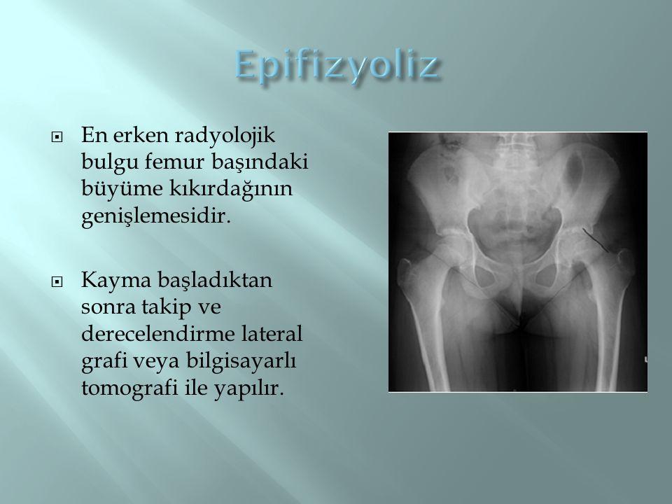 Epifizyoliz En erken radyolojik bulgu femur başındaki büyüme kıkırdağının genişlemesidir.