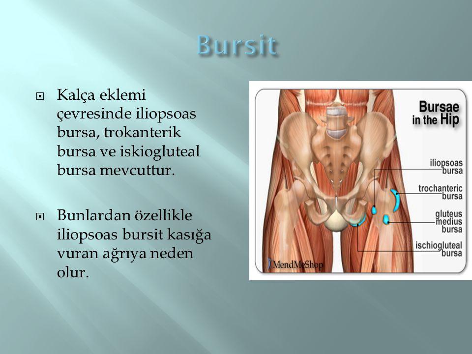 Bursit Kalça eklemi çevresinde iliopsoas bursa, trokanterik bursa ve iskiogluteal bursa mevcuttur.