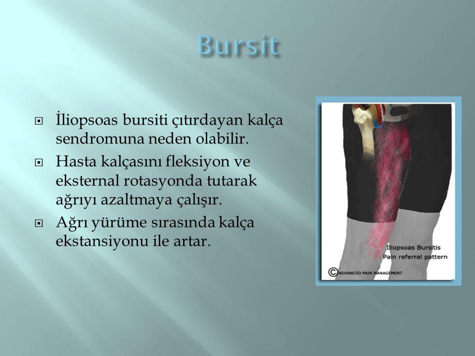 Bursit İliopsoas bursiti çıtırdayan kalça sendromuna neden olabilir.