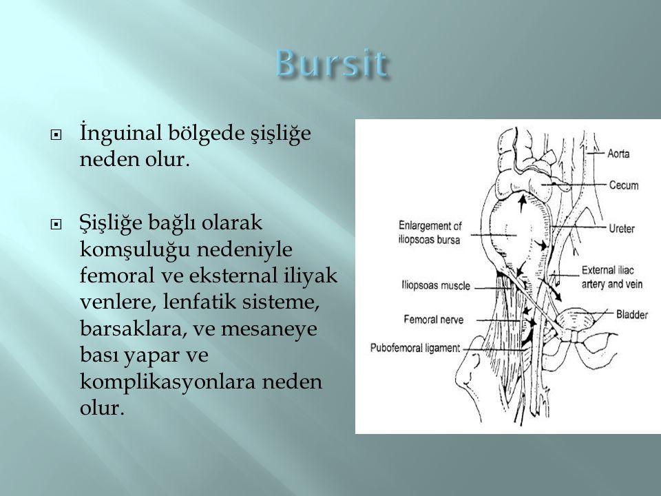 Bursit İnguinal bölgede şişliğe neden olur.
