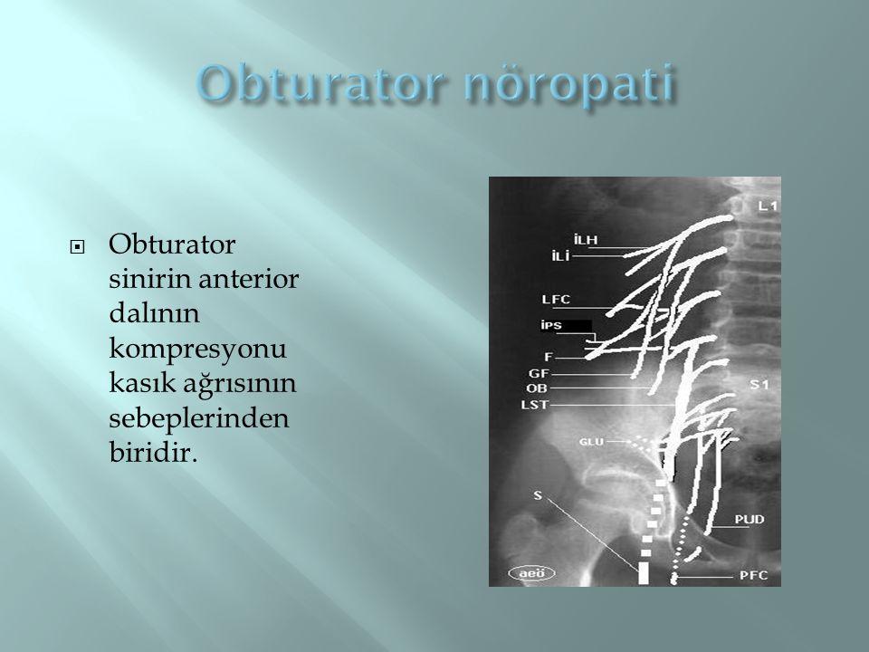Obturator nöropati Obturator sinirin anterior dalının kompresyonu kasık ağrısının sebeplerinden biridir.