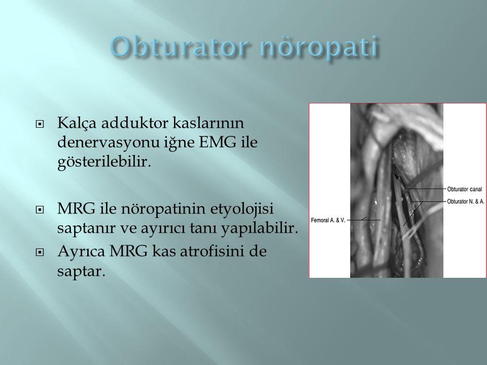 Obturator nöropati Kalça adduktor kaslarının denervasyonu iğne EMG ile gösterilebilir.