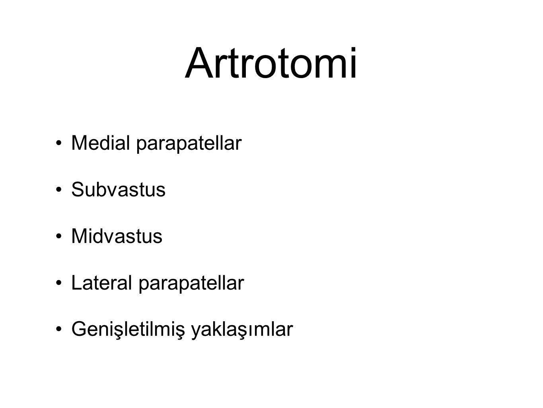 Artrotomi Medial parapatellar Subvastus Midvastus Lateral parapatellar