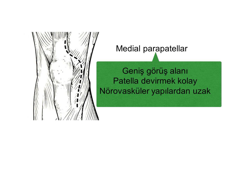 Patella devirmek kolay Nörovasküler yapılardan uzak