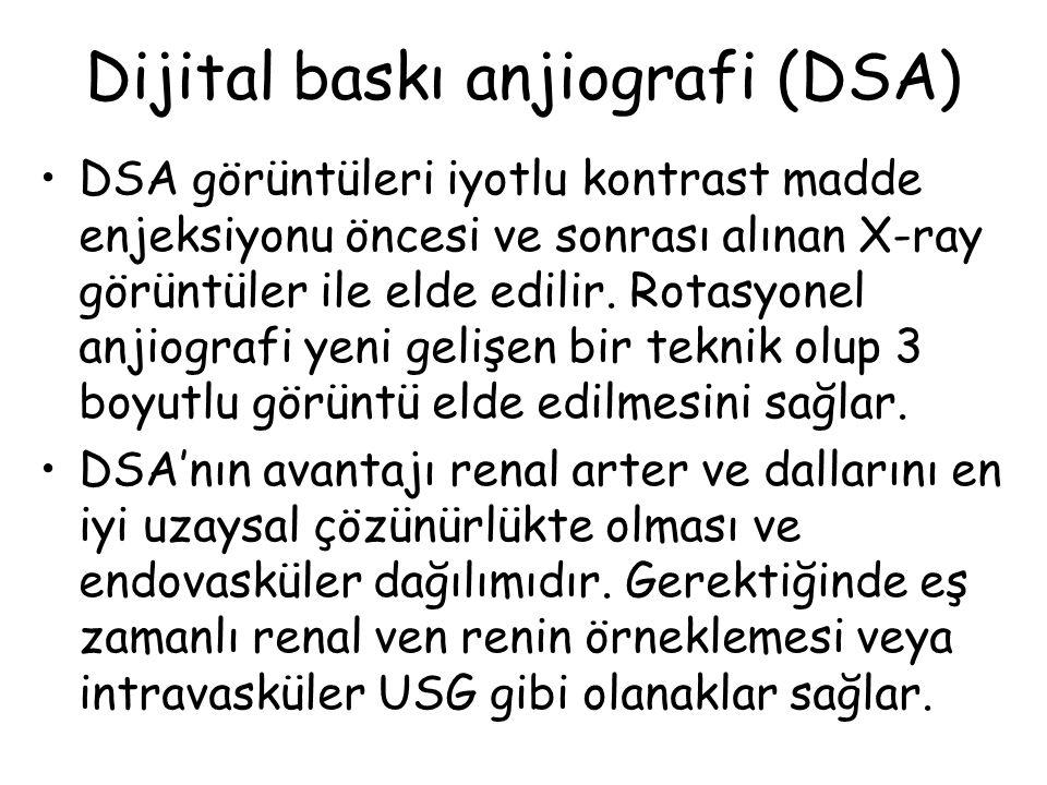 Dijital baskı anjiografi (DSA)