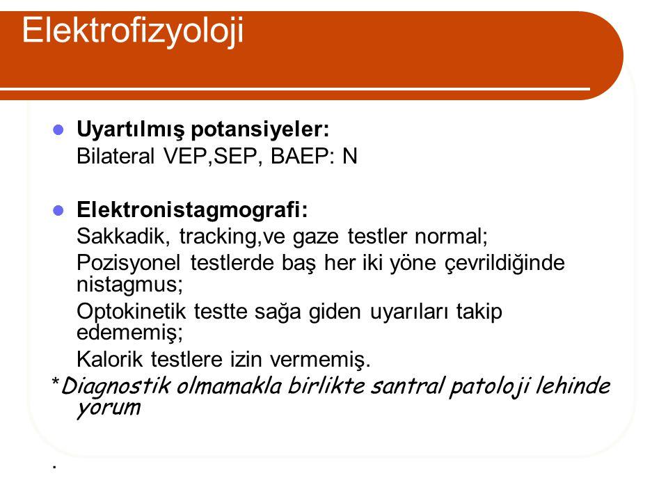 Elektrofizyoloji Uyartılmış potansiyeler: Bilateral VEP,SEP, BAEP: N