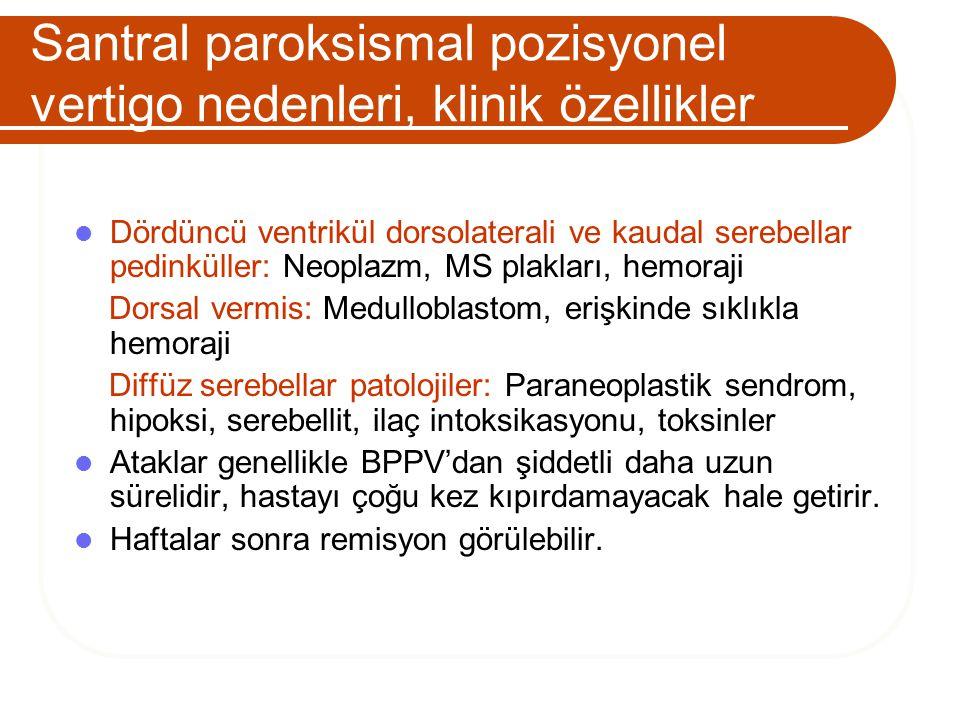 Santral paroksismal pozisyonel vertigo nedenleri, klinik özellikler