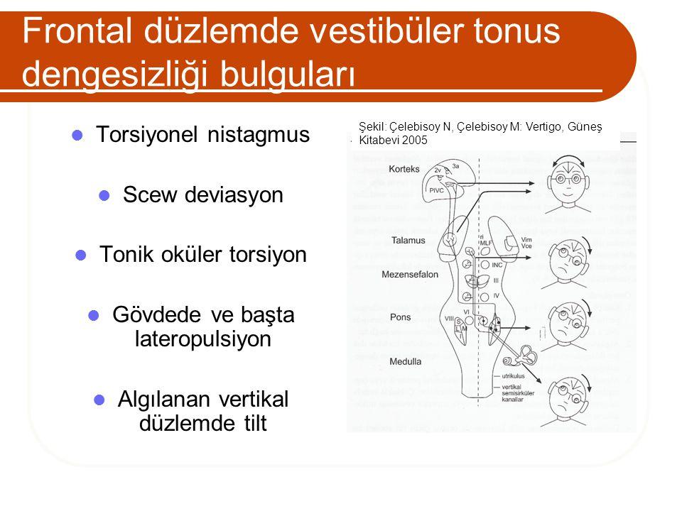 Frontal düzlemde vestibüler tonus dengesizliği bulguları