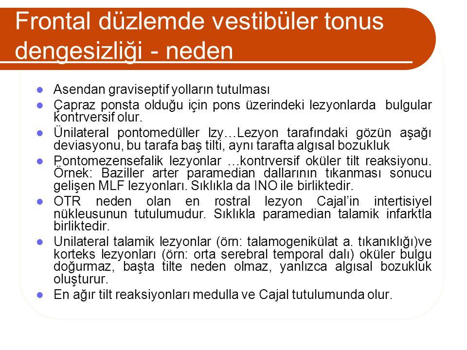 Frontal düzlemde vestibüler tonus dengesizliği - neden
