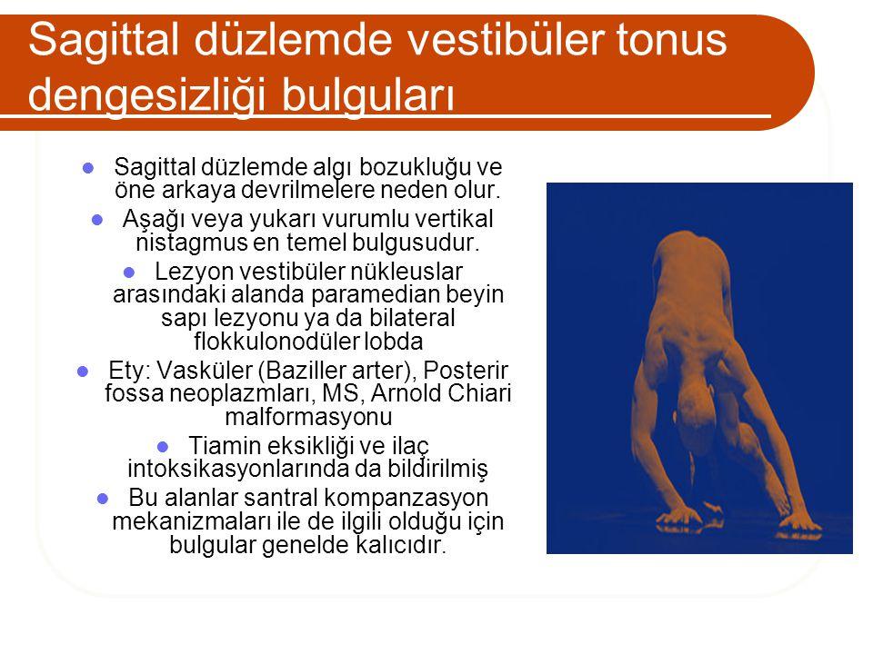 Sagittal düzlemde vestibüler tonus dengesizliği bulguları