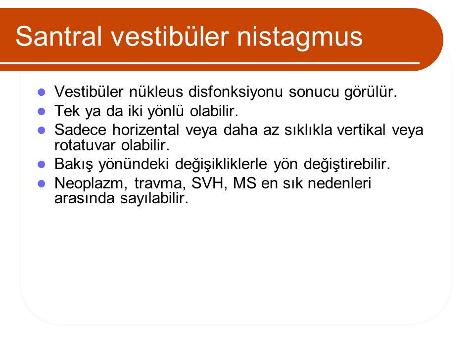 Santral vestibüler nistagmus