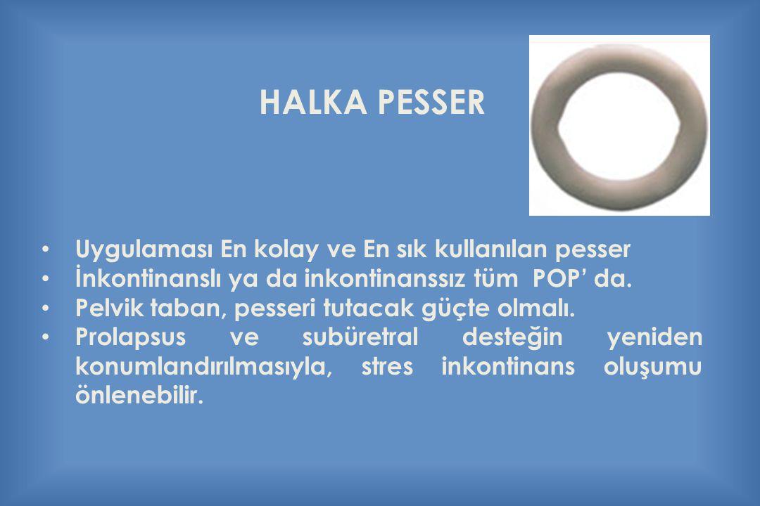 HALKA PESSER Uygulaması En kolay ve En sık kullanılan pesser