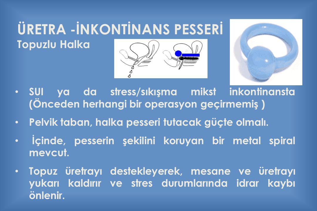 ÜRETRA -İNKONTİNANS PESSERİ