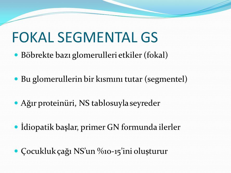 FOKAL SEGMENTAL GS Böbrekte bazı glomerulleri etkiler (fokal)