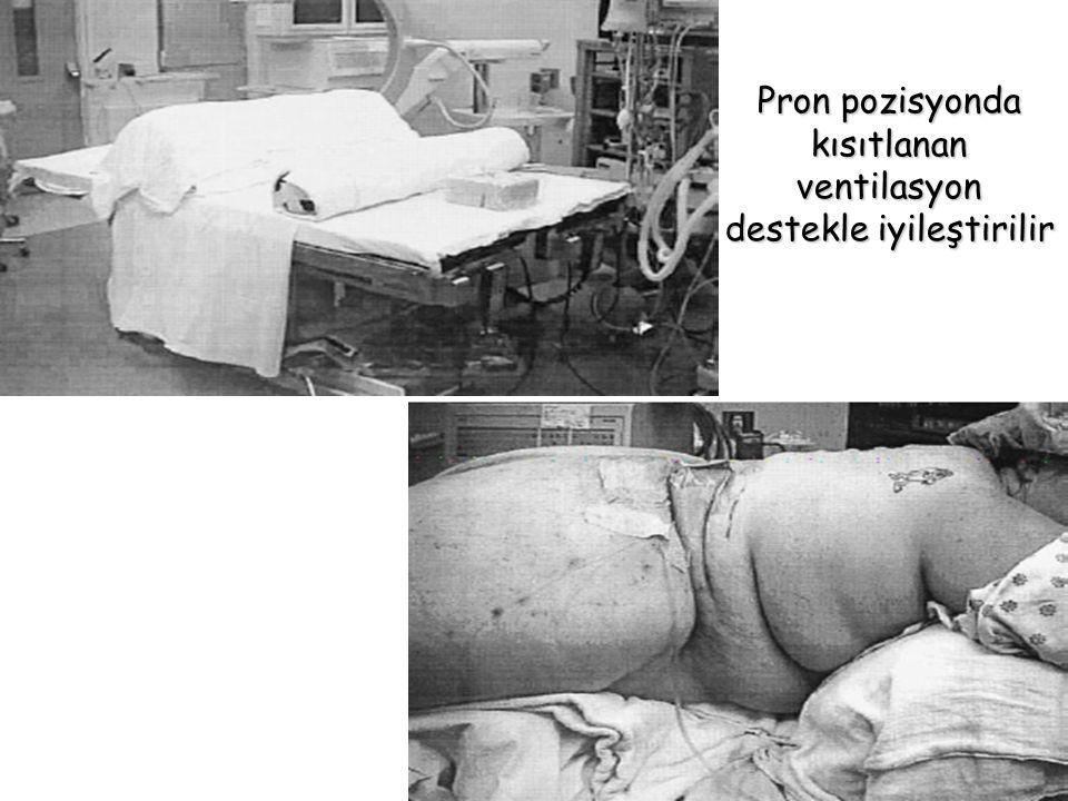 Pron pozisyonda kısıtlanan ventilasyon destekle iyileştirilir