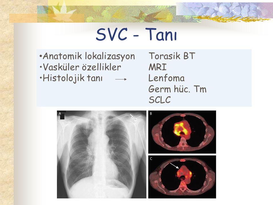 SVC - Tanı Anatomik lokalizasyon Torasik BT Vasküler özellikler MRI