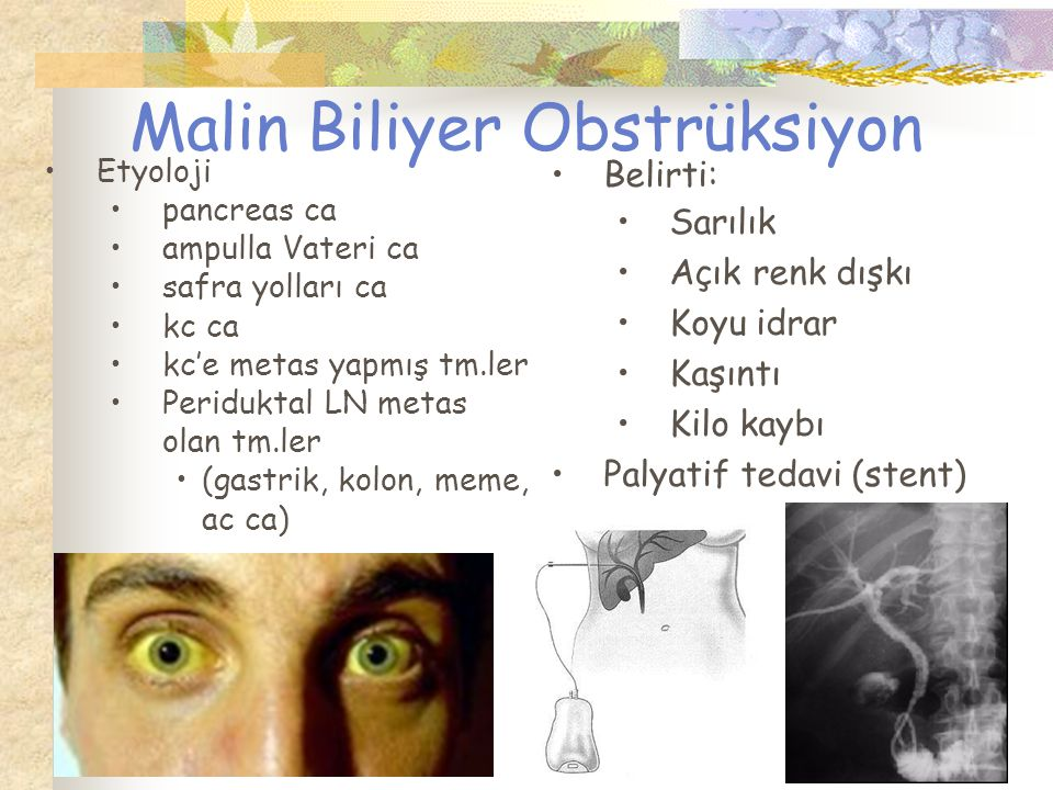 Malin Biliyer Obstrüksiyon