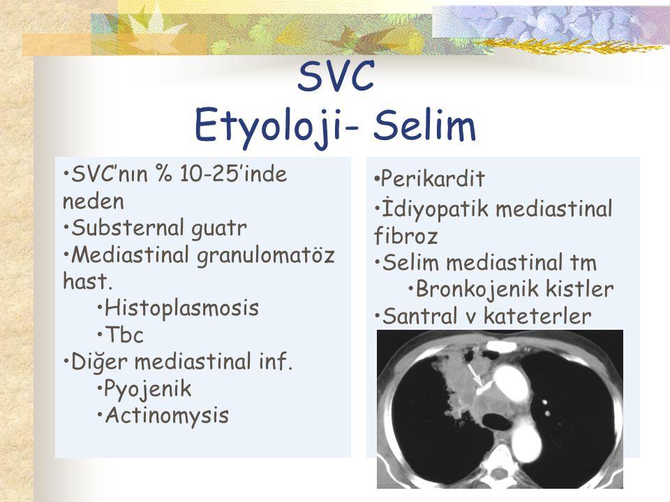 SVC Etyoloji- Selim SVC'nın % 10-25'inde neden Substernal guatr