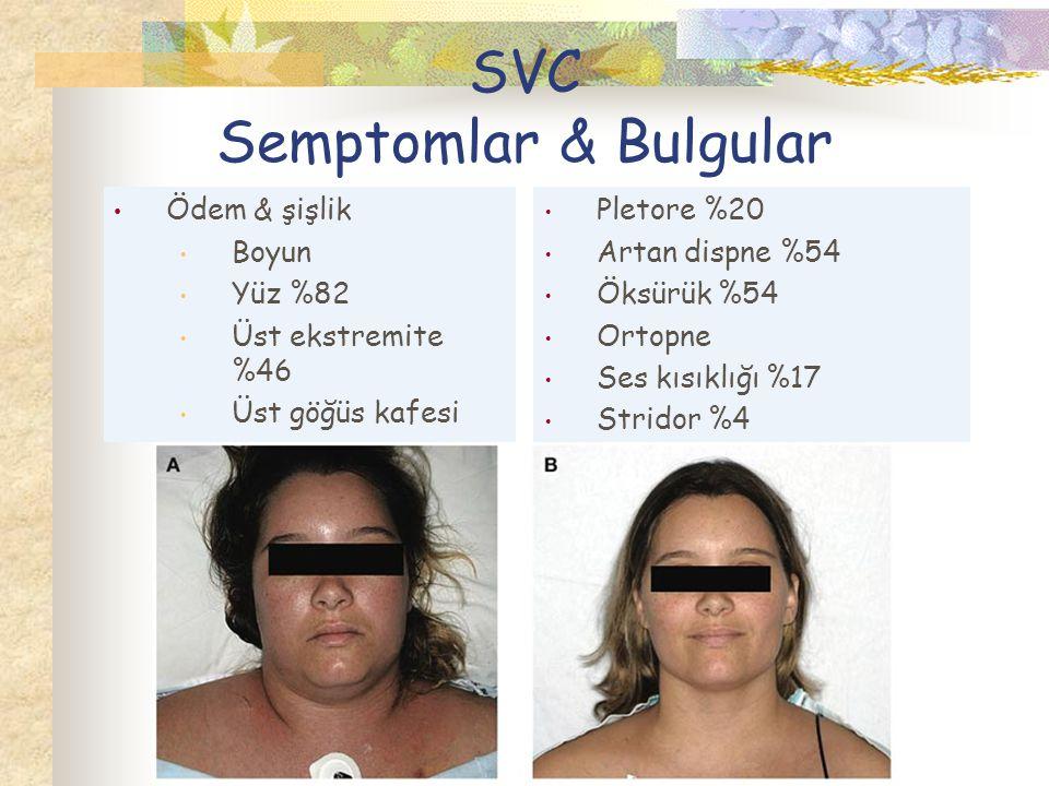 SVC Semptomlar & Bulgular