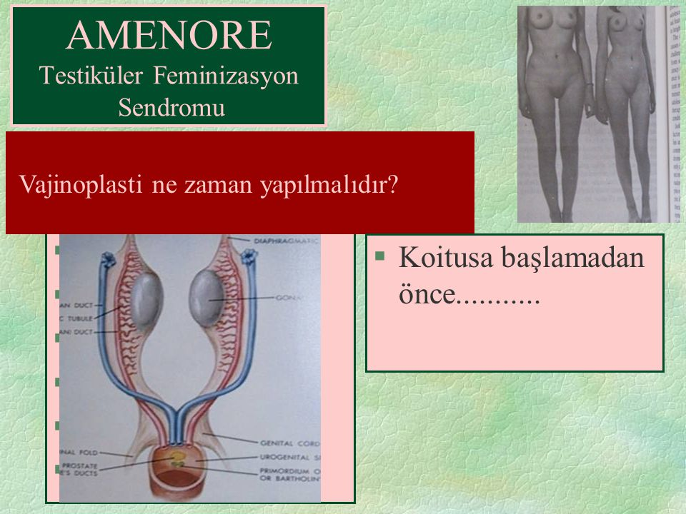 AMENORE Testiküler Feminizasyon Sendromu