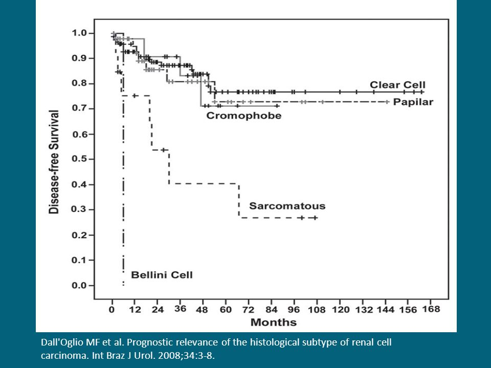 Dall Oglio MF et al. Prognostic relevance of the histological subtype of renal cell carcinoma.