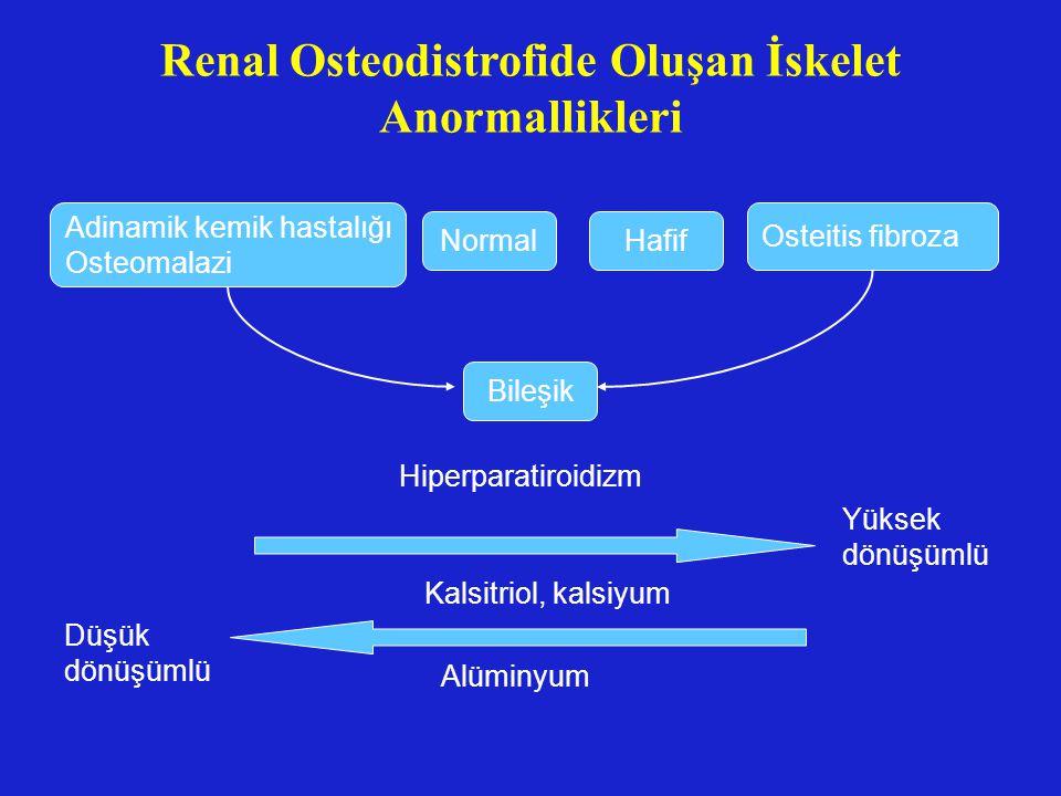 Renal Osteodistrofide Oluşan İskelet Anormallikleri
