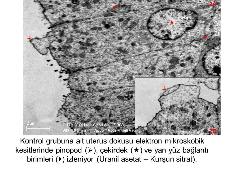 Kontrol grubuna ait uterus dokusu elektron mikroskobik kesitlerinde pinopod (), çekirdek () ve yan yüz bağlantı birimleri () izleniyor (Uranil asetat – Kurşun sitrat).