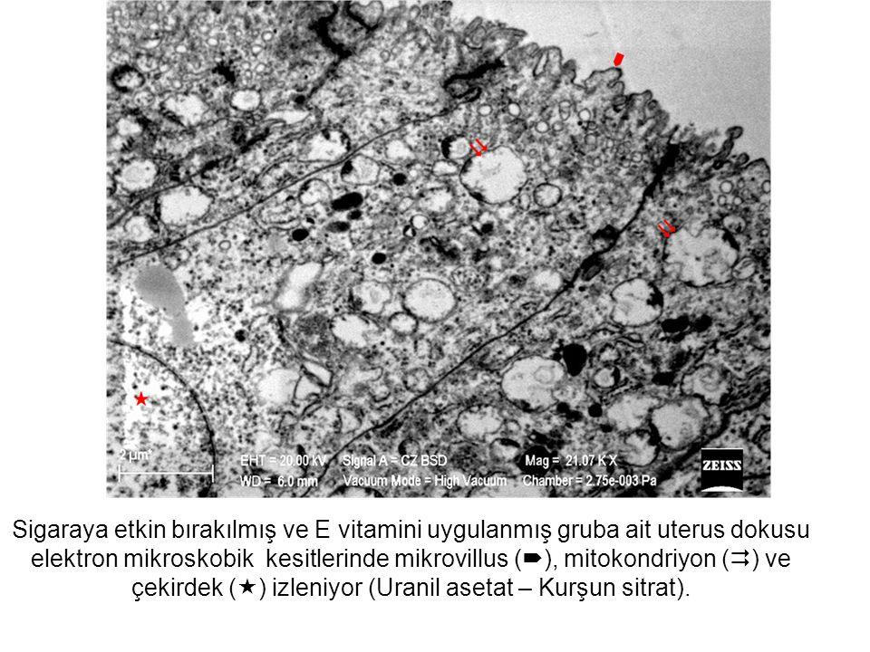 Sigaraya etkin bırakılmış ve E vitamini uygulanmış gruba ait uterus dokusu elektron mikroskobik kesitlerinde mikrovillus (), mitokondriyon () ve çekirdek () izleniyor (Uranil asetat – Kurşun sitrat).