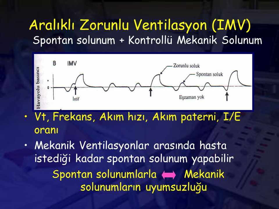 Aralıklı Zorunlu Ventilasyon (IMV)