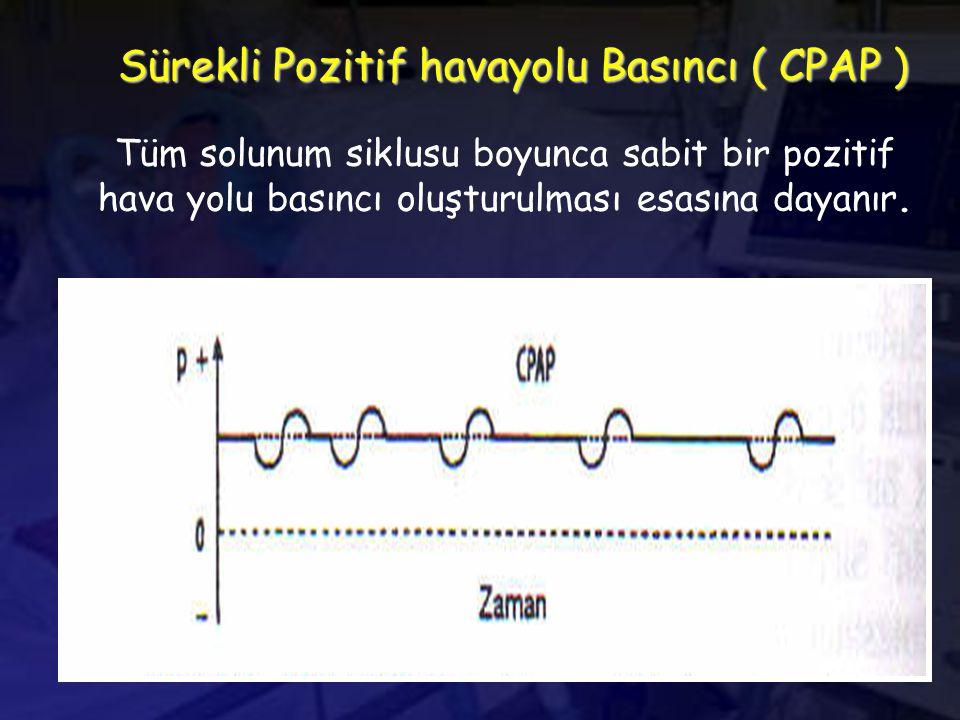 Sürekli Pozitif havayolu Basıncı ( CPAP )