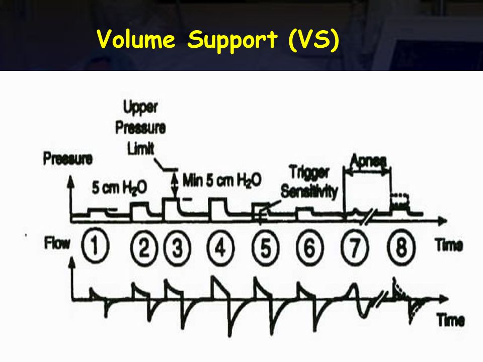 Volume Support (VS)