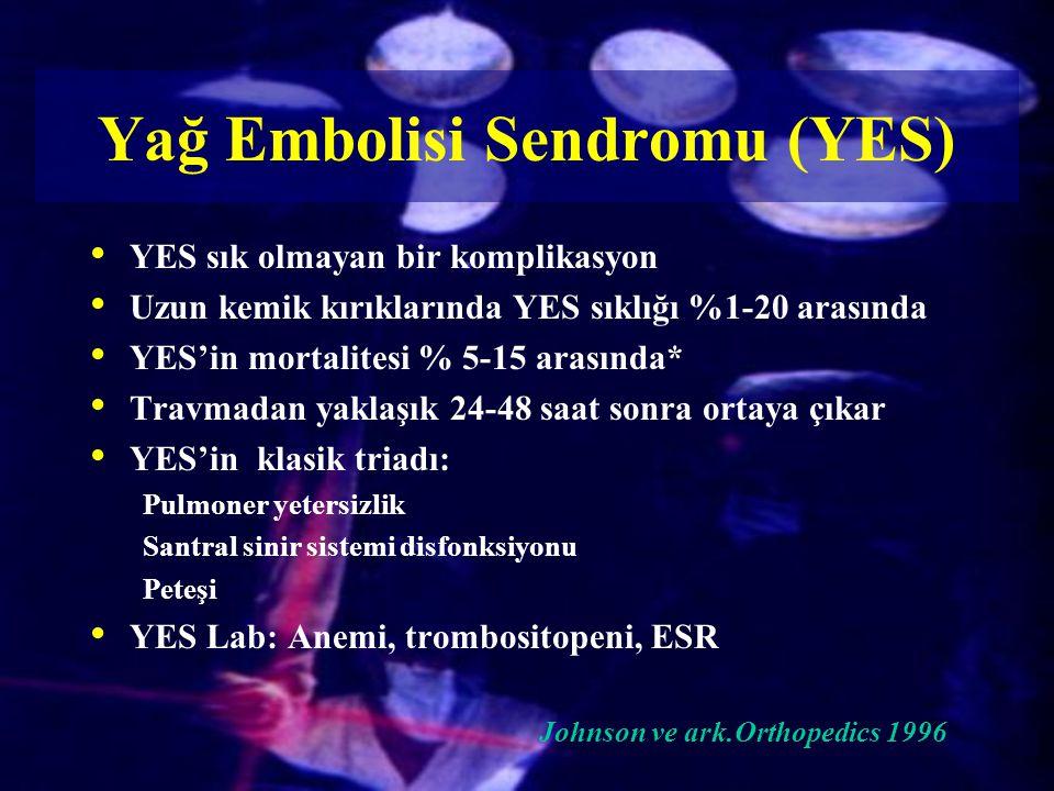 Yağ Embolisi Sendromu (YES)